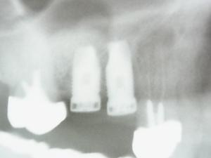 R0011329.JPGのサムネール画像