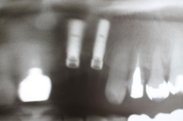 IMG_3009.JPGのサムネイル画像